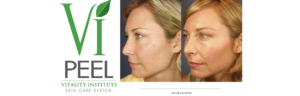 Vi Peel logo and before and after treatment images