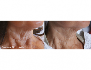 Example of before and after anti-aging neck results from a Fractora skin treatment